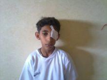 معلم فى ابتدائية فرسان الجزيرة بالخرج يضرب طالب و يتسبب في إصابة عينة ووالد الطالب يهدد برفع شكوى على المدرسة