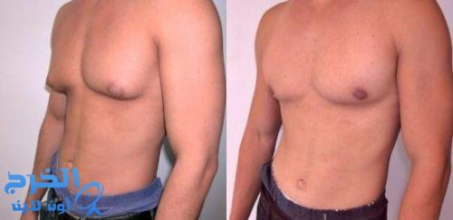 خاص للرجال.. كيف تُعالج أزمة ترهل الثدي في أسبوع؟