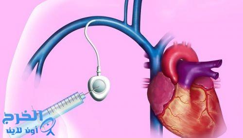 النحفاء أكثر عرضة للوفاة عقب القسطرة القلبية