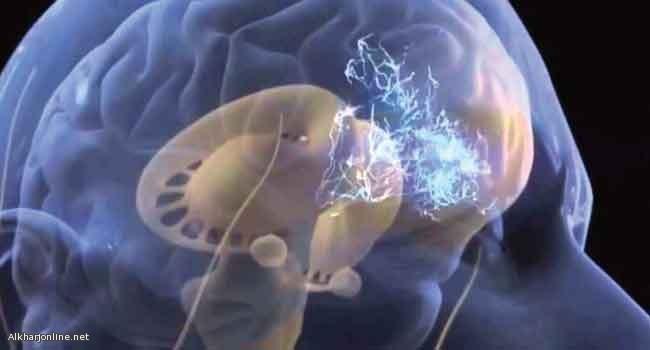 علاج ثورة لسرطان الدماغ