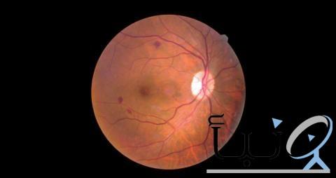مركبات نباتية تمنع حدوث العمى لدى مرضى السكري
