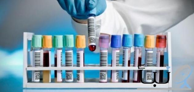 #للرجال فقط.. 5 تحاليل طبية مهمة تعرف عليهم