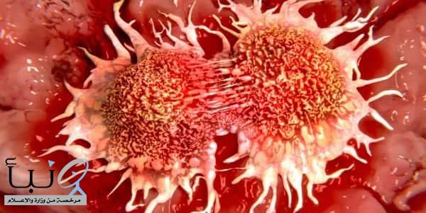 تطوير فيروس قادر على قتل كل أنواع السرطان