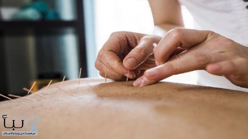 الوخز بالإبر أفضل في تخفيف الصداع النصفي من الأدوية التقليدية