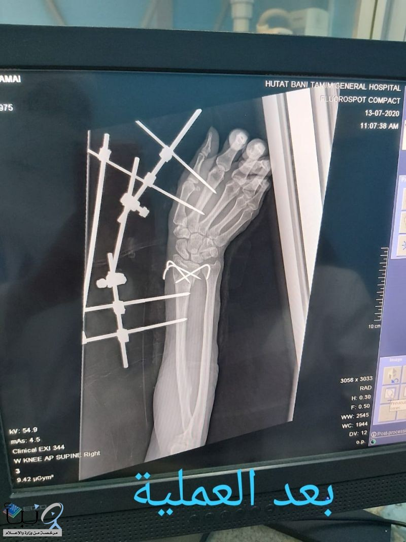 نجاح  عملية تجبير كسور متعددة لمصابة في مستشفى #حوطة_بني_تميم العام
