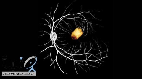 خطوة نحو علاج العمى بزراعة خلايا الشبكية