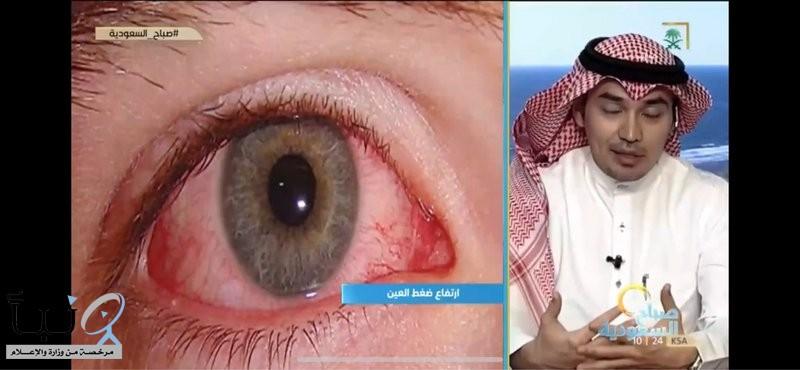 """استشاري طب عيون يحذِّر: """"السويرق"""" يخطف البصر دون أعراض"""